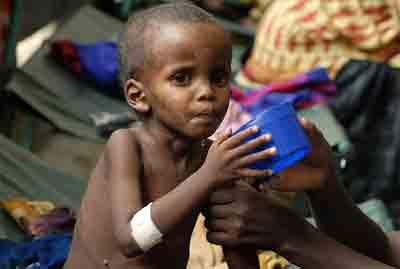 afrik_malnutrition